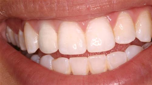 tooth whitening - after