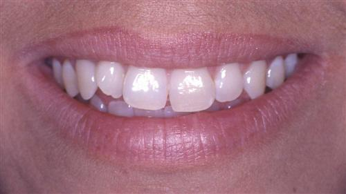 veneers- before